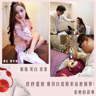 網紅陳米唐|皮秒雷射。無痛零恢復期~我的新春開運美容,原來這麼簡單!