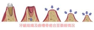 【植牙】植牙治療黃金時間