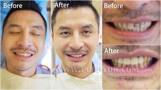【全瓷冠/貼片】部落客波痞的哥哥來悅庭牙醫一個下午爛牙變美齒