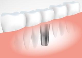 【植牙】4妙招、3神器 植牙永久使用