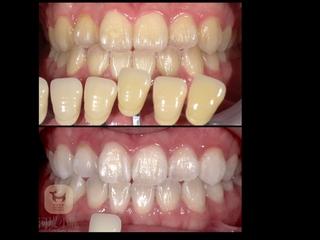 牙齒美白Q&A