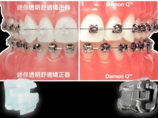 Damon戴蒙矯正器-牙套怎麼選?認識戴蒙迷你舒適型矯正器