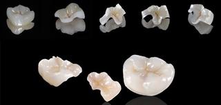 補牙更好的選擇-全瓷嵌體