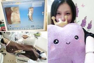 【舒眠治療】舒眠治療是仿妝夭后Yui的救星 悅庭牙醫全瓷冠當天完成
