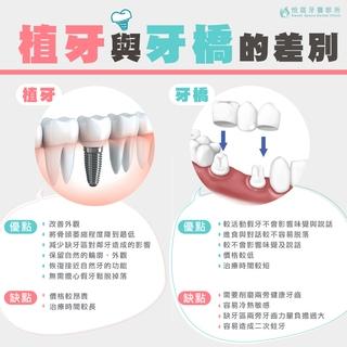 【植牙】植牙與牙橋的優缺點