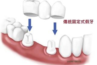 人工植牙跟固定式假牙比較