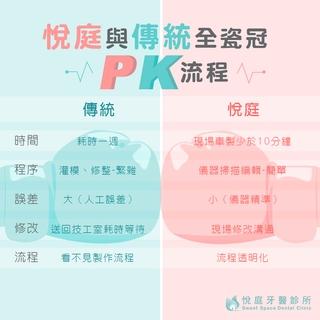 【全瓷冠】現代與傳統全瓷冠PK流程