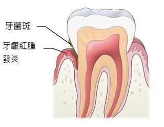 牙齦萎縮原來是牙周病造成?牙醫師教您如何對抗牙周病!