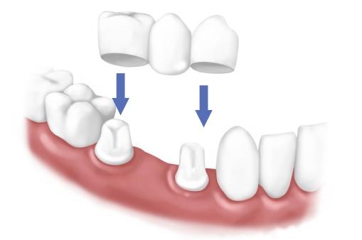植牙流程-植牙後遺症-牙橋示意圖-牙橋是透過左右二顆牙齒的力量支撐原本的牙齒
