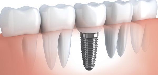 植牙流程-植牙後遺症-植牙指的就是植入金屬人工牙根並在上方加上假牙-可恢復正常咀嚼功能