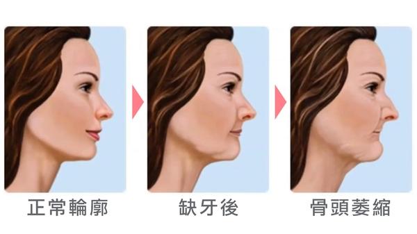 植牙流程-植牙後遺症-缺牙不補會讓骨頭萎縮並影響整個臉部肌肉、表情