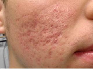 【醫師專欄】朱芃年/痘疤治療一定要了解不同痘疤的形成和型態
