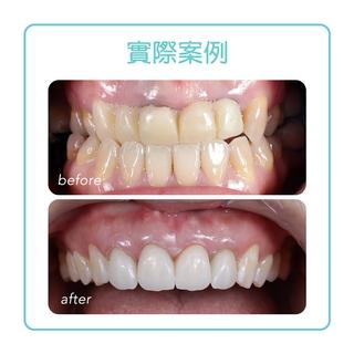 【植牙】擺脫牙橋的不美觀,奔向導引式植牙美觀耐用的懷抱