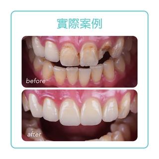 【全瓷冠】全瓷冠幫助患者拯救斷裂的牙齒與保護根管治療後的牙齒