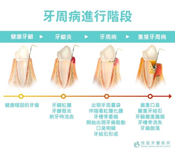 牙周病症狀與進行階段