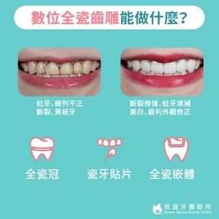 【全瓷冠/瓷牙貼片/全瓷嵌體】數位全瓷的牙科應用