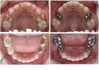 小朋友的假牙-不鏽鋼牙套
