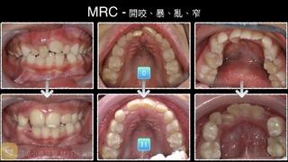 河堤小鹿牙醫診所:MRC肌功能矯正-超神奇效果