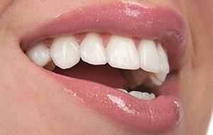 牙齒冷光美白 還你一口亮白牙-高雄河堤小鹿牙醫