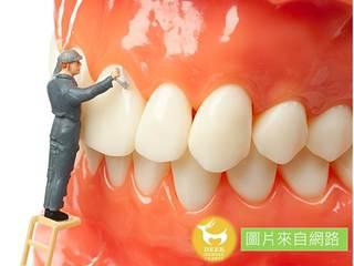 牙齒也有結石!定期洗牙清牙結石維持口腔及牙齒健康!!