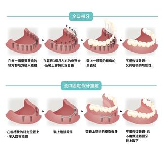全口缺牙的煩惱,可以利用All-on 4 全口快速負載假牙來重建微笑曲線!
