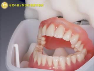 活動假牙大解析
