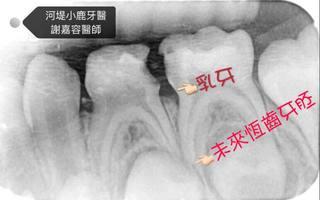 小朋友牙齒蛀牙該怎麼辦?蛀到神經了怎麼辦?