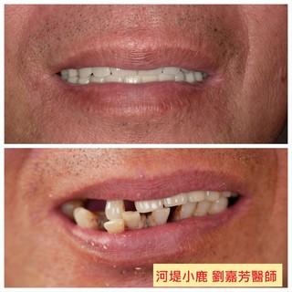 全口牙齒壞光光 怎麼辦? 給牙齒重生的機會 河堤小鹿牙醫All On 4全口重建!