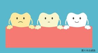 牙齒美白Q&A,河堤小鹿牙醫為您解惑牙齒美白問題~!!