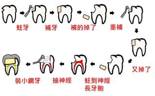 小朋友的蛀牙總是補沒多久就掉了?